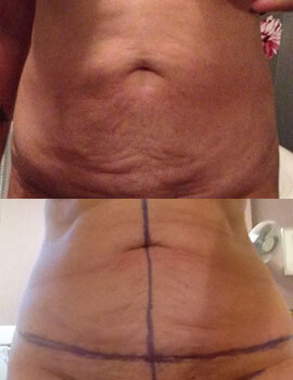 Photo of Lisa's tummy before tummy tuck and with the planning lines drawn on