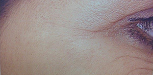 Photo of woman's crows feet after treatment