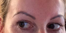 Photo of woman's eyebrow sunspot free after treatment