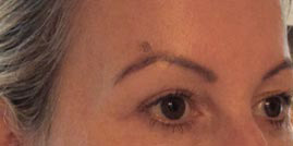 Photo of woman's eyebrow with sunspot before treatment