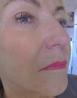 Photo of woman's eye after dermal filler treatment