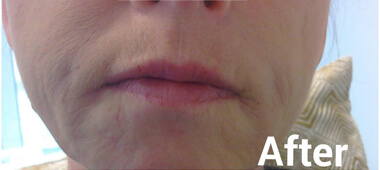 Photo of woman's mouth and nose after treatment