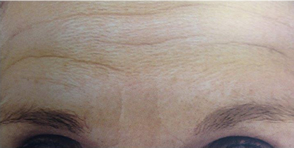 Photo of patient's forehead before treatment