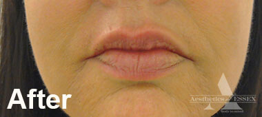 Photo of woman's lips after treatment