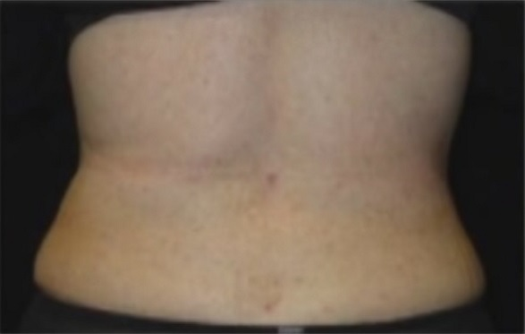 Photo of patient's back after liposuction surgery