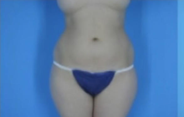 Photo of patient's abdomen and thighs before liposuction
