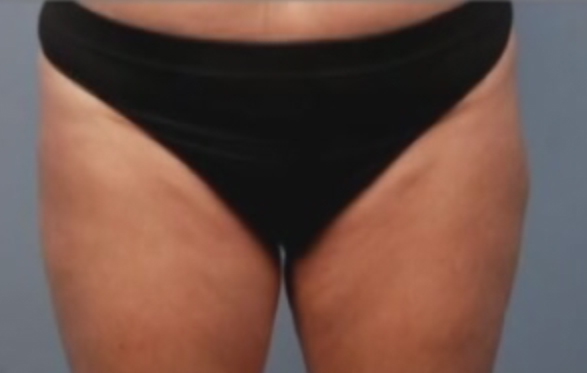 Photo of patient's thighs after liposuction surgery
