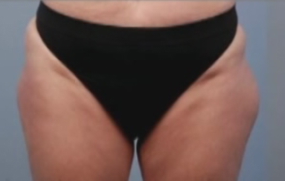 Photo of patient's thighs before liposuction surgery