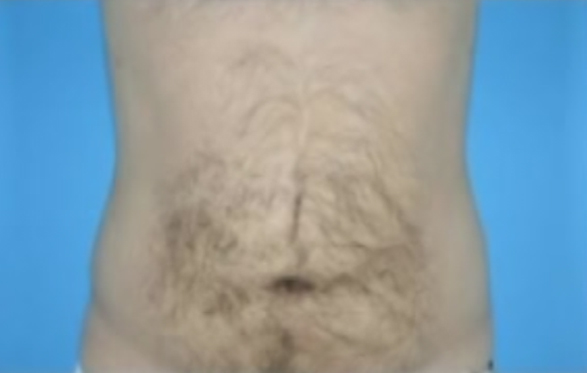 Photo of male patient's abdomen after liposuction