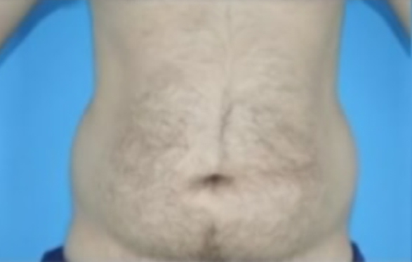 Photo of male patient's abdomen before liposuction