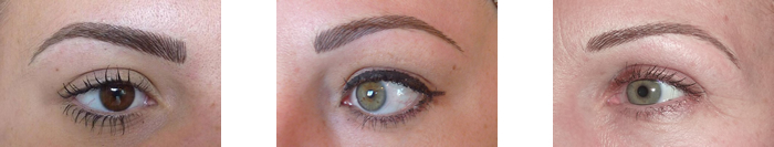 Photo of various eyebrows before treatment
