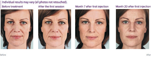 Front view photo of woman's face at different stages of treatment