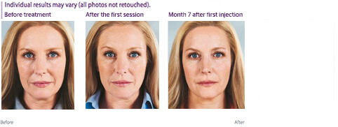 Photos of woman's face at various stages of treatment