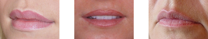 Photo of various lip types after treatment