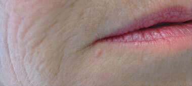 Photo of skin tag below woman's bottom lip