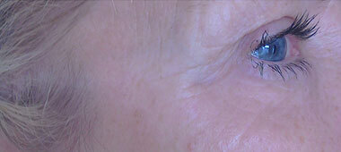 Photo of the side of a woman's cheekbone without sunspot after treatment
