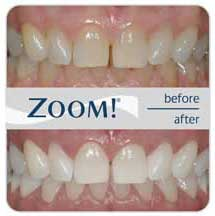 Before and after photos of teeth whitening zoomed view
