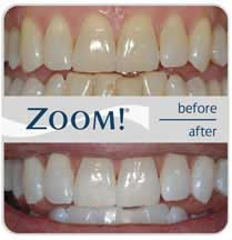 Before and after photos of another set of teeth whitened zoomed view