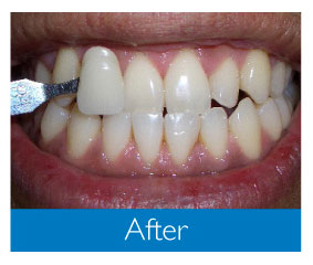 Photo of teeth after whitening, white teeth