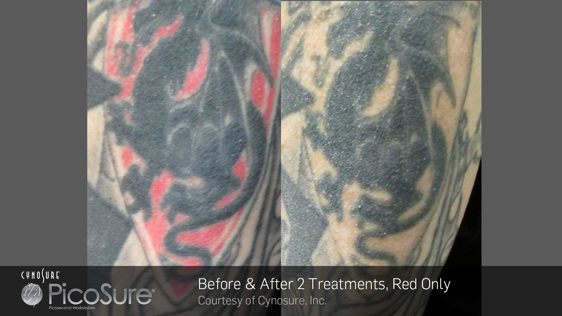 Laser tattoo removal essex picosure laser tattoo removal for Brown tattoo ink cover up